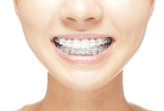 woman smiling, ceramic braces