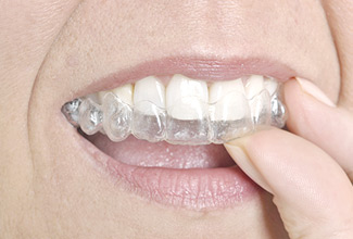 Broadway Orthodontics, Ontario, Orangeville